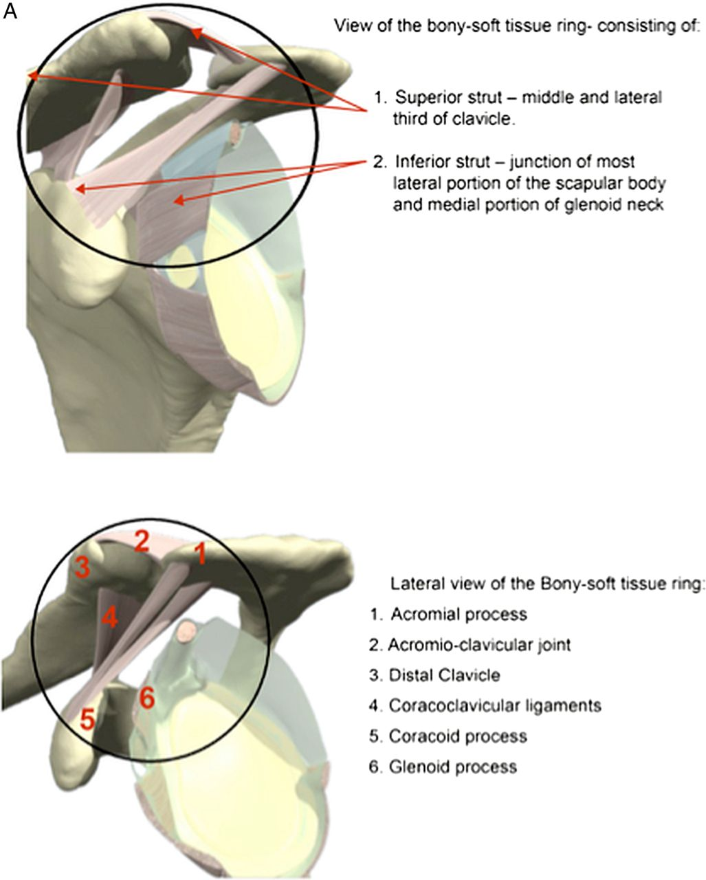Complex shoulder girdle injuries following mountain bike accidents ...