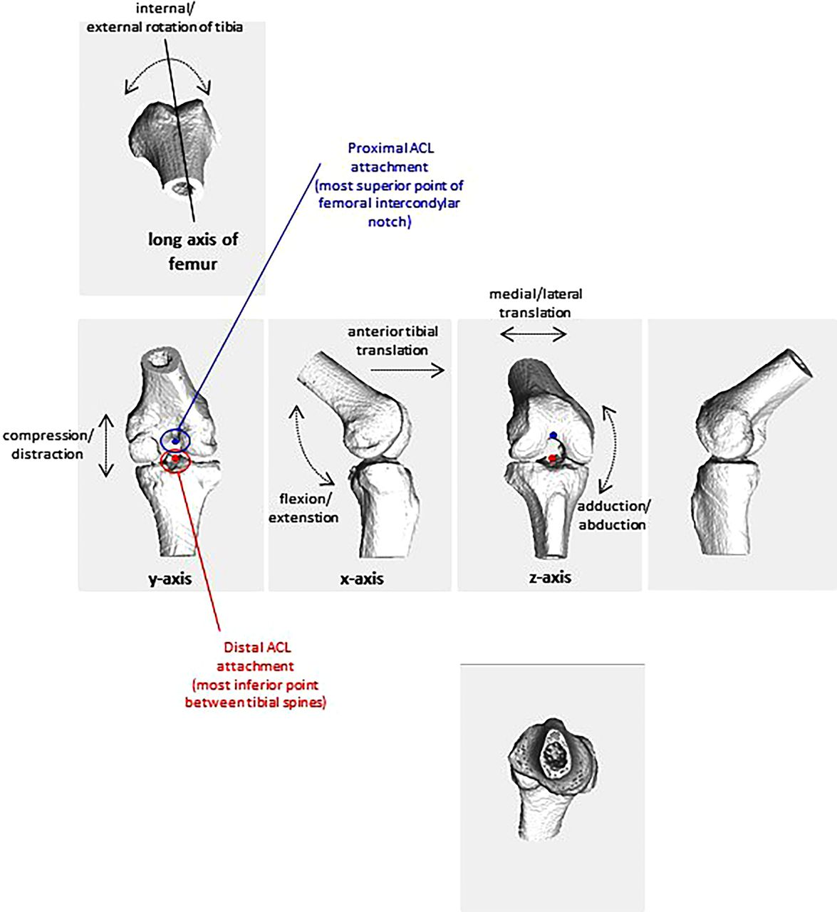 Vertical Stiffness Is Not Related To Anterior Cruciate Ligament