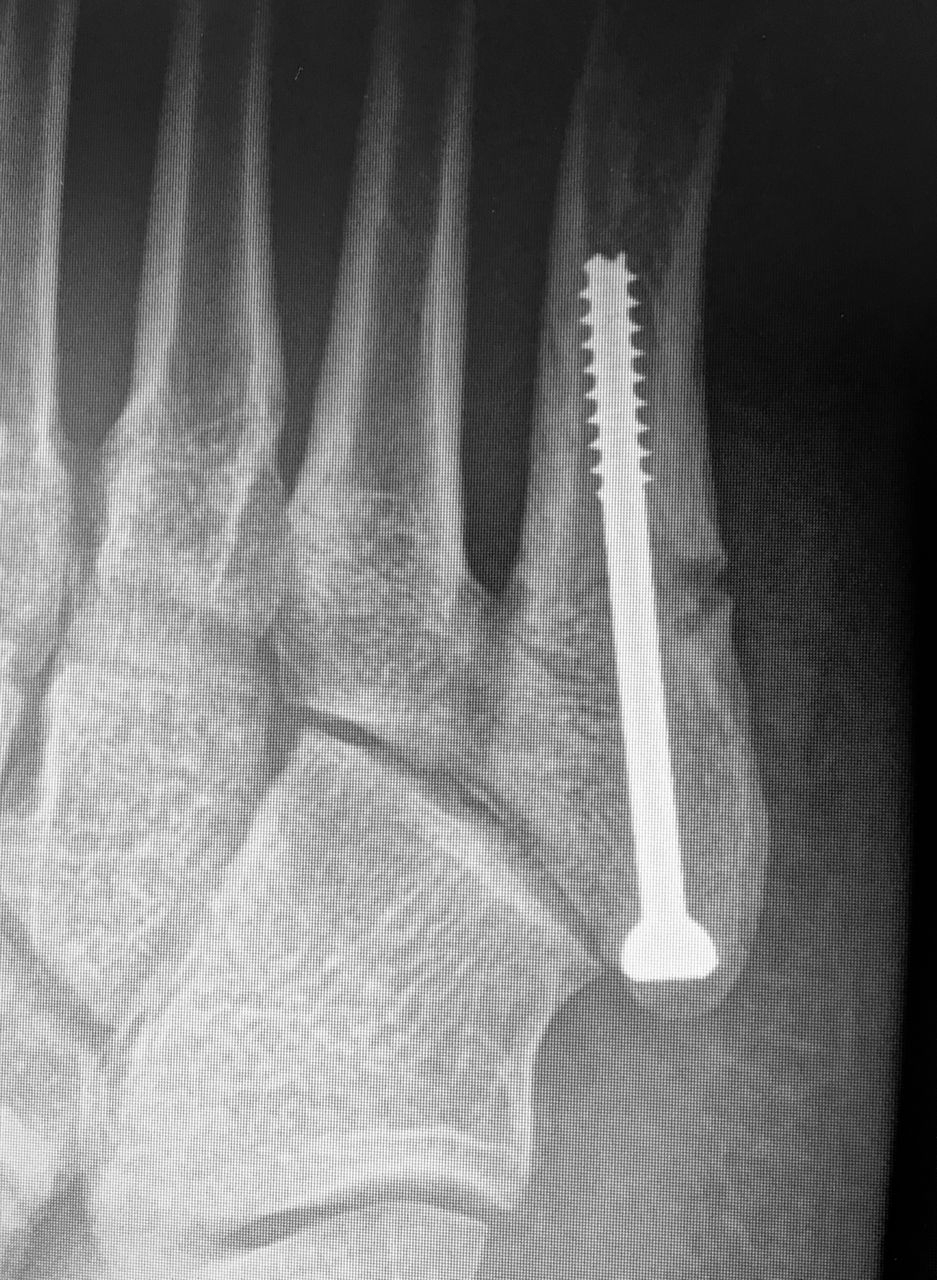 Stress Fracture In Foot Shoe Price Compare